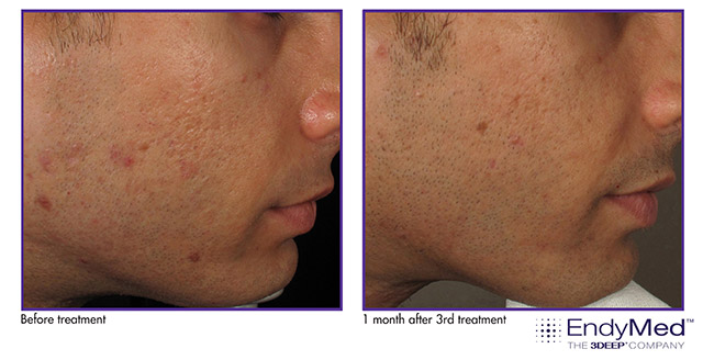 EndyMed Intensif Acne Scar Therapy before and after photos