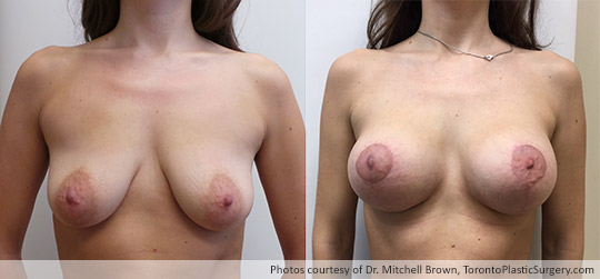 Breast Augmentation and Round Gel Implants before and after photos