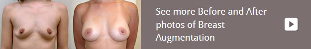 gallery-breast-augmentation
