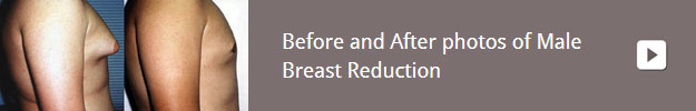 gallery-male-breast-reduction