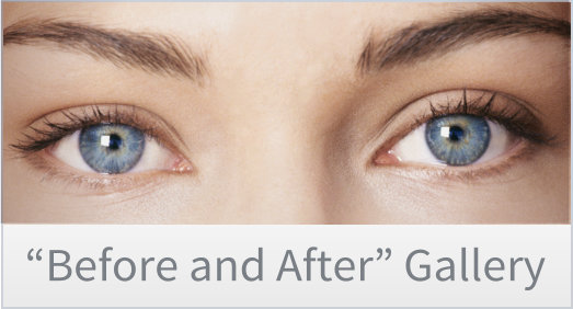 Before and After Plastic Surgery Photo Gallery