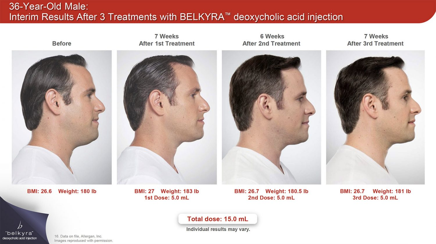 Belkyra (Kybella) Double Chin Treatment - Toronto Plastic