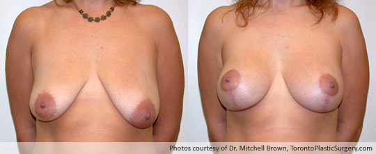 Breast Augmentation and Lift, Before and After 6 Months