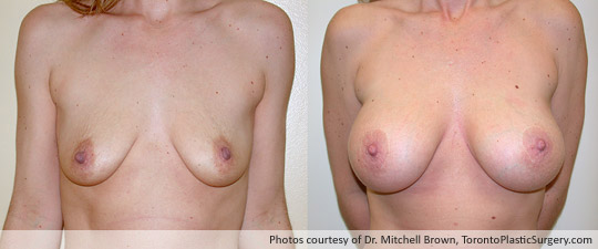 Breast Augmentation and Lift, Before and After 6 Years