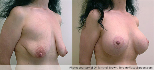Breast Augmentation and Lift: Breast Lift and 397gm Smooth Round Gel Implant, Before and After 6 Months