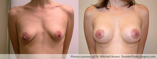 Breast Augmentation and Lift: Breast Lift and Shaped Gel Implant – 295gm on the left, 280 gm on the right, Before and After 6 Months