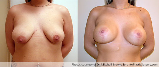 Breast Lift with Round Gel Implants, Before and After 6 Months