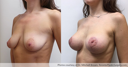 34-year old patient with 295gm Round Gel Implants under muscle and breast lift, Before and After 3 Months