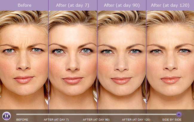 Unretouched photos of paid models taken at maximum frown before treatment with BOTOX® Cosmetic and taken at maximum frown after treatment with BOTOX® Cosmetic at indicated time points.