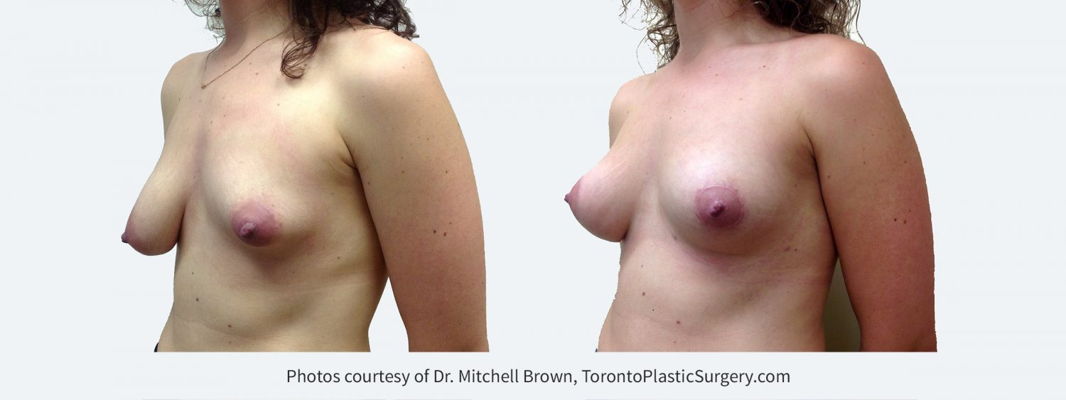 Breast asymmetry with smaller left breast. Treated with left breast augmentation with fat grafting and right breast lift. Before and 6 months after
