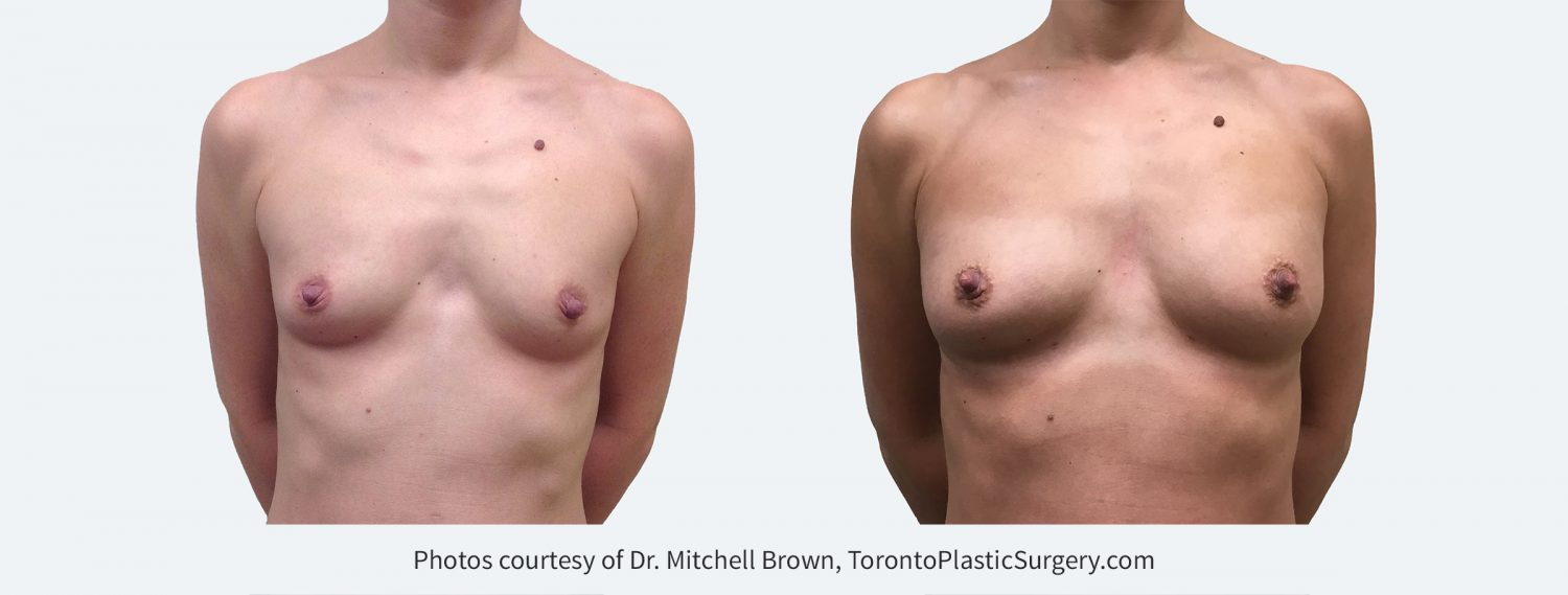 Breast augmentation performed with fat grafting. Single session of 345cc of fat on each side. Before and 6 months after.
