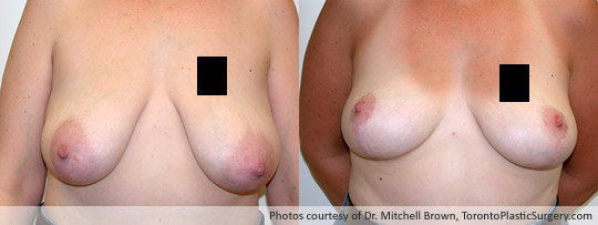 Breast Lift, Before and After 8 Months