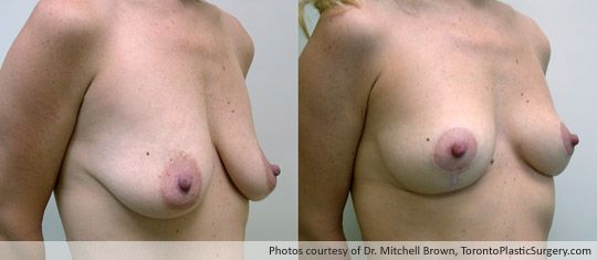 Breast Lift, Before and After 10 Months