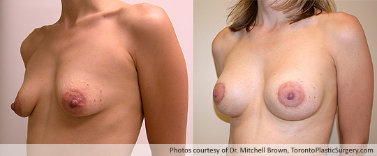 Breast Lift/Augmentation with Shaped Gel Implants, Before and After 6 Months