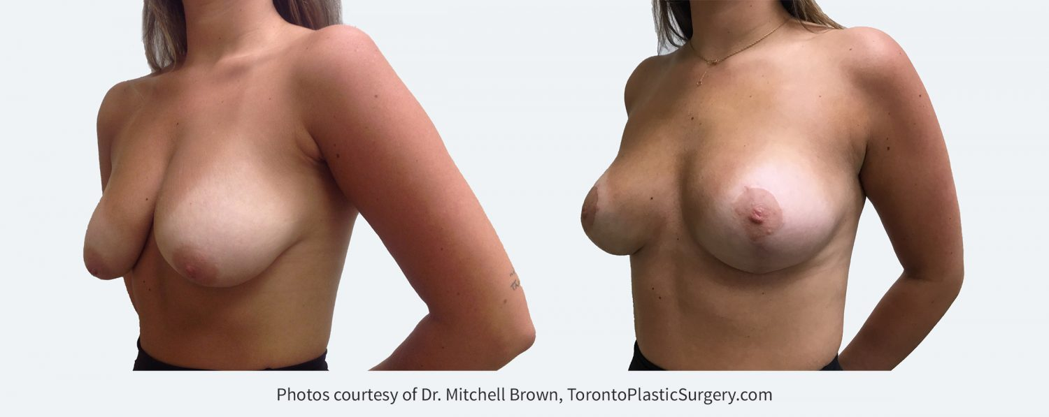 Breast Lift, Before and After 6 months