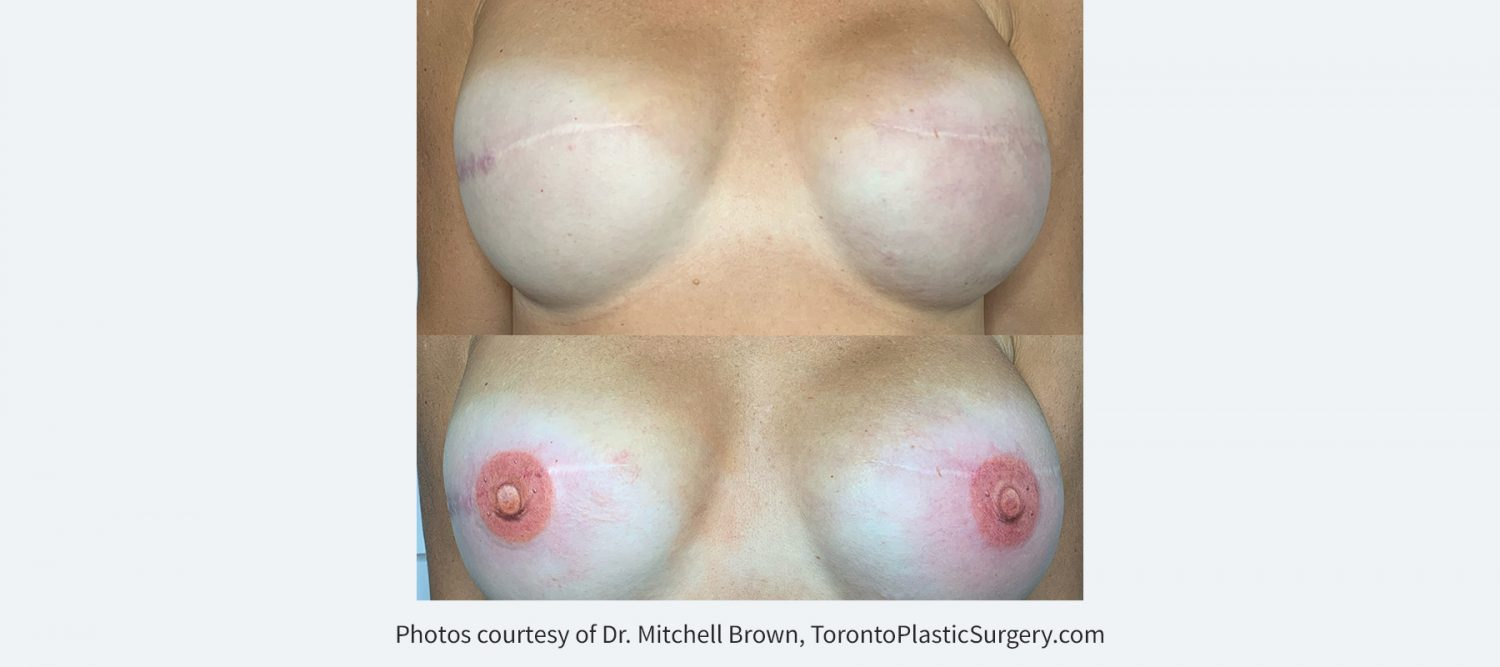 3D tattoo of nipple and areola following implant breast reconstruction