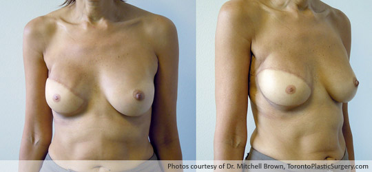 Right Breast Reconstruction, Latissimus Muscle Flap and Implant