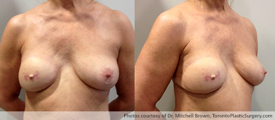 Right Latissimus Flap from Back with Implant, Nipple Reconstruction Prior to Tattoo