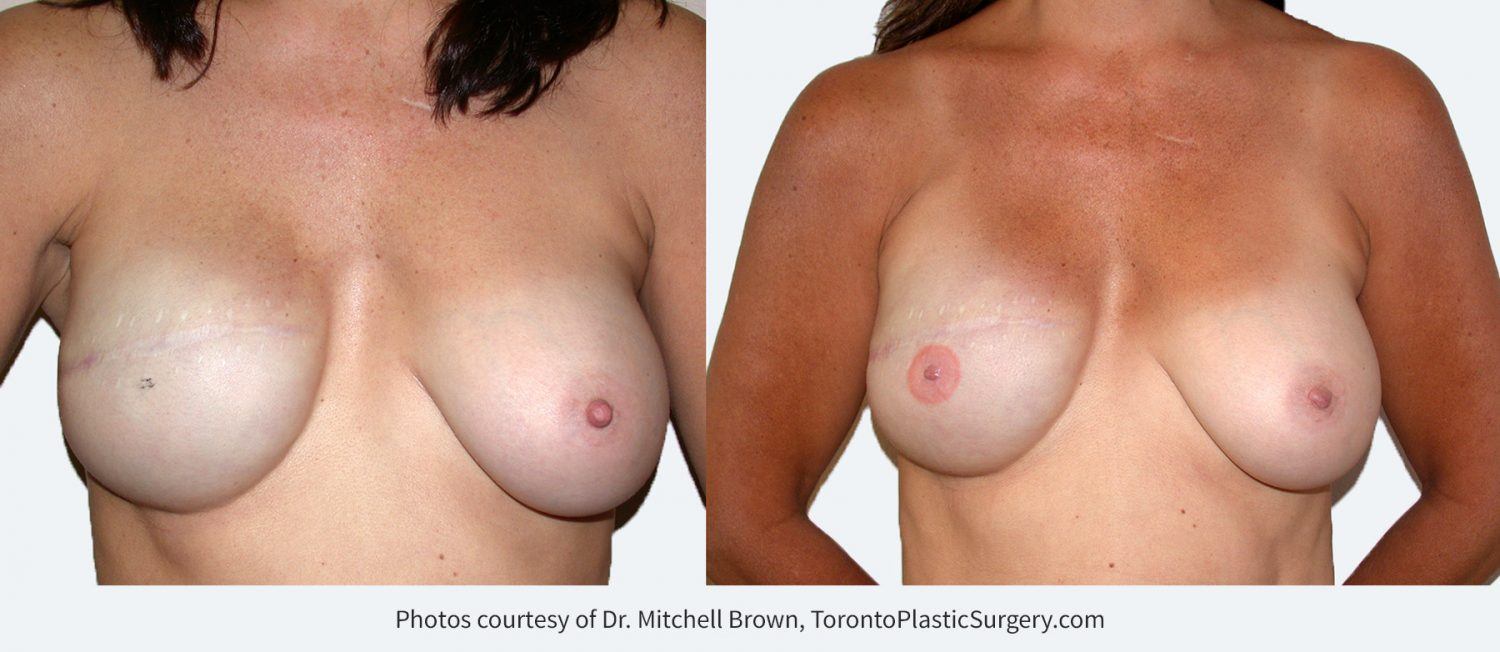 Right Breast Reconstruction with Implant Before and After Nipple Reconstruction