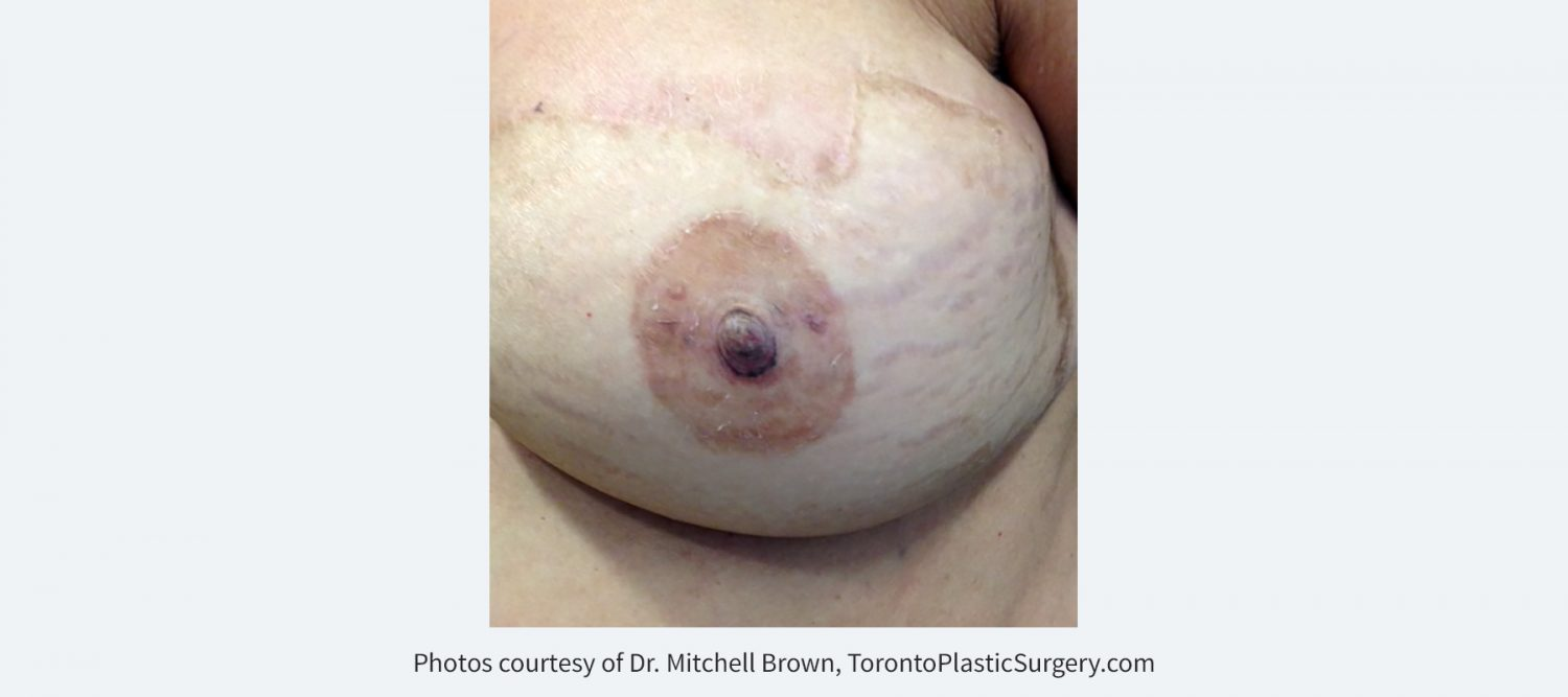 Nipple Reconstruction with 3D Tattoo
