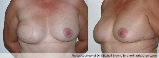Breast Reconstruction, TRAM Flap Right Breast Before Nipple Reconstruction