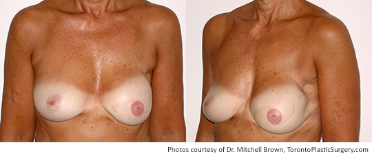 Left TRAM Flap and Right Breast Lift, Before and After 1 Year