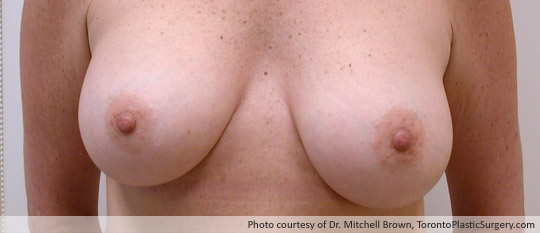 Requires Left Mastectomy Due to Breast Cancer