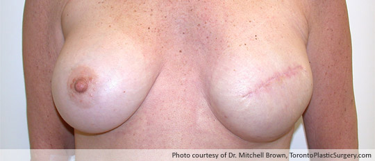 Breast Reconstruction, 400gm Round Gel Implant and Alloderm