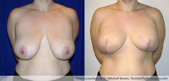 Bilateral Mastectomy for Breast Cancer, Breast Reconstruction Using 500gm Round Gel Implants