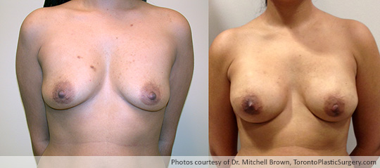 Bilateral Nipple-Sparing Mastectomy, Reconstruction with 375gm Implant and Alloderm, Before and After 1 Year