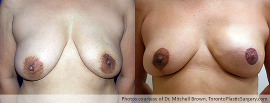 Left Mastectomy and Implant Reconstruction, with Balancing Lift and Nipple Reconstruction, Before and After 10 Months