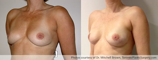Bilateral Nipple-Sparing Mastectomy