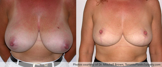 Breast Reduction, Before and After 6 Months