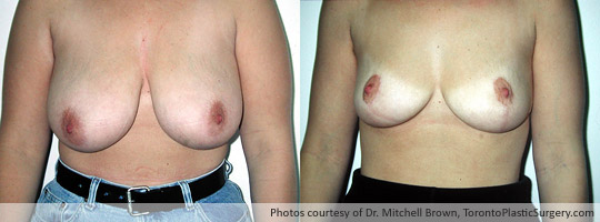 Breast Reduction, Before and After 1 Year
