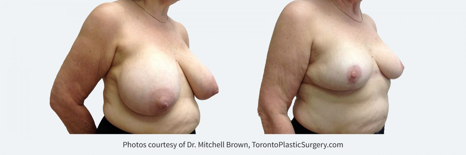 Breast Reduction, Before and 1 Year After