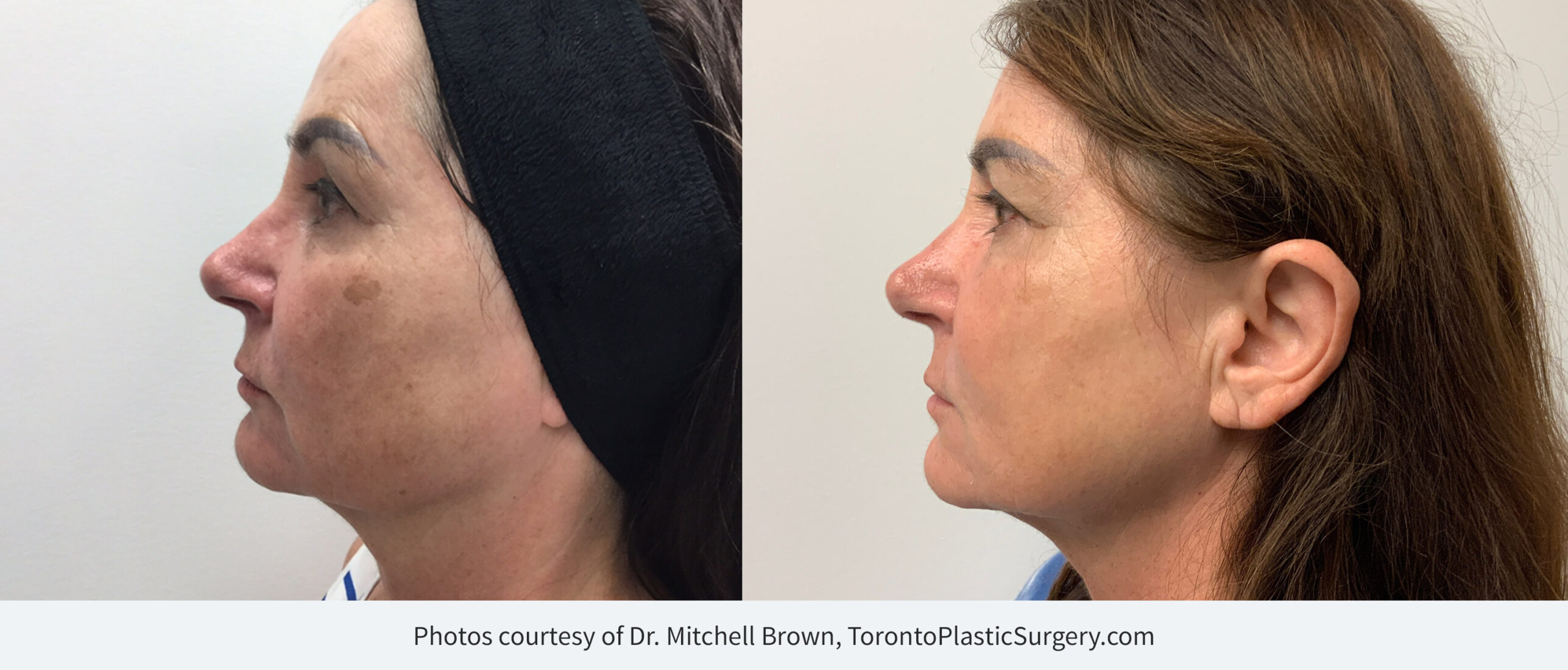 Before & After 3 sessions of BBL treatment