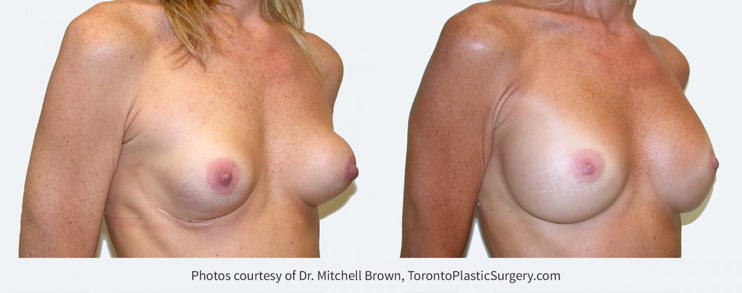 Capsular contracture (scar tissue around implants) corrected with implant removal, scar tissue removal and placement of new 275 cc silicone gel breast implants under the pectoral muscle