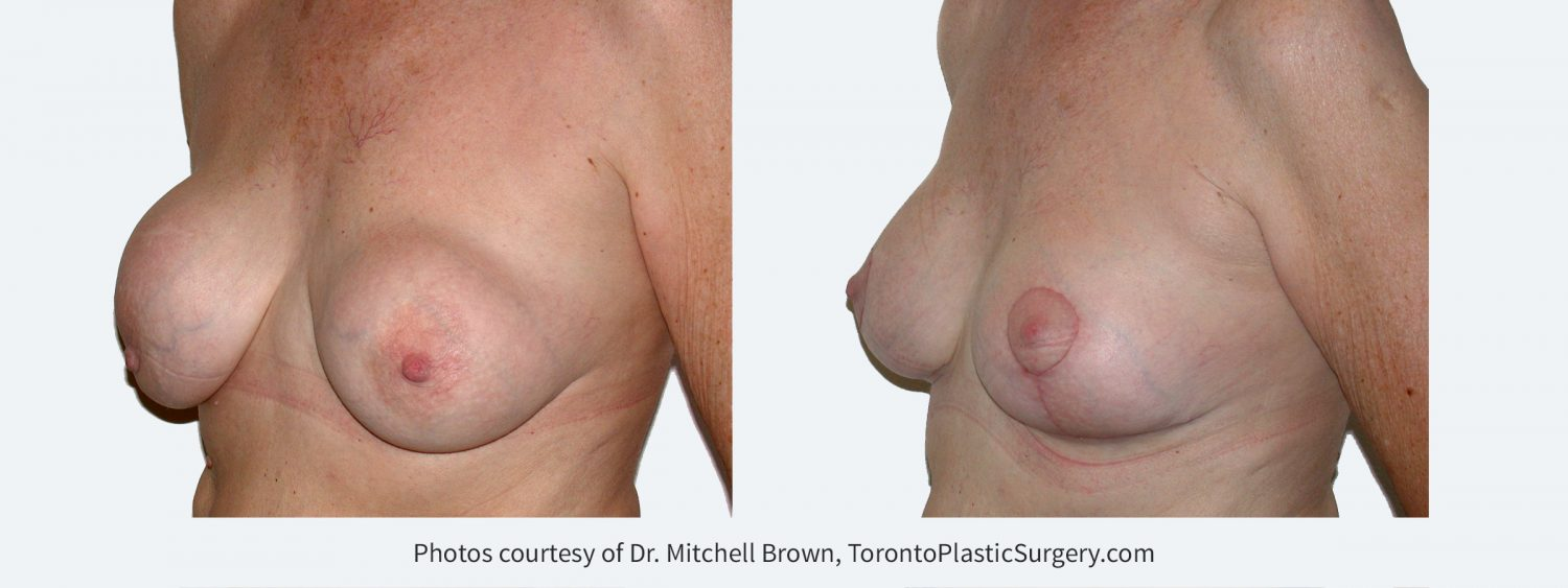 Recurrent capsular contracture treated with implant removal, scar tissue removal, replacement of new silicone gel implants under the pectoral muscle and breast lift. Before and 2 months after
