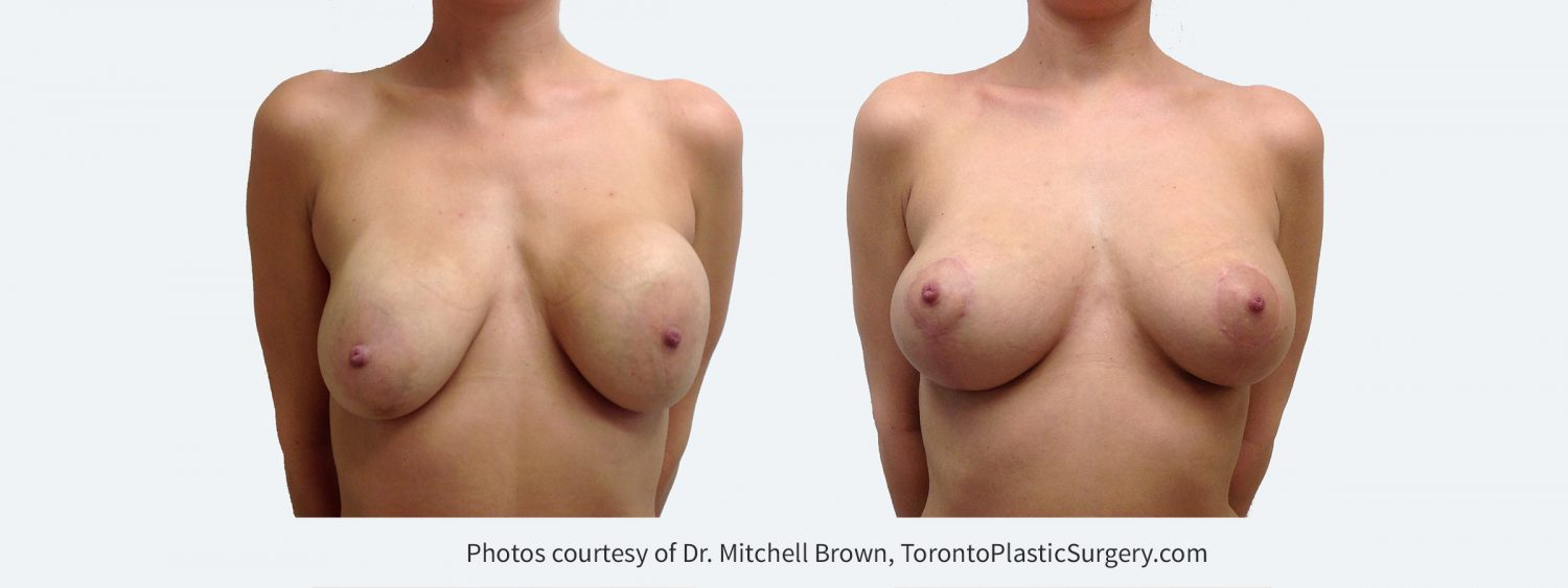 Recurrent capsular contracture on the left and implant rupture on the right treated with implant removal, scar tissue removal, replacement of new silicone gel implants under the pectoral muscle and breast lift. Before and 3 months after