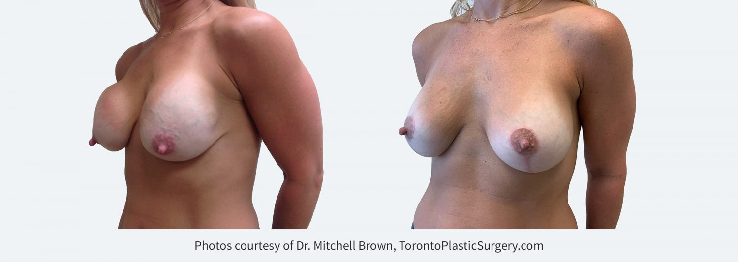 Capsular contracture (scar tissue around implants) and ptosis (sagging) 13 years following breast augmentation. Corrected with removal of old implants and scar tissue, replacement of new 330cc round silicone gel implants under the muscle along with a breast lift. Before and 6 months after.