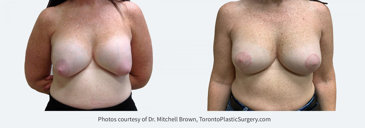 Capsular Contracture corrected with implant removal, scar tissue removal, replacement of new silicone gel 310cc implants above the pectoral muscle and breast lift. Before and 6 months after.