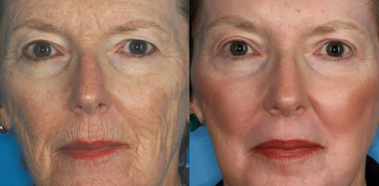 Deep Resurfacing with Laser Skin Peel, Before and After