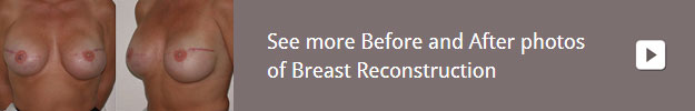 gallery-breast-reconstruction