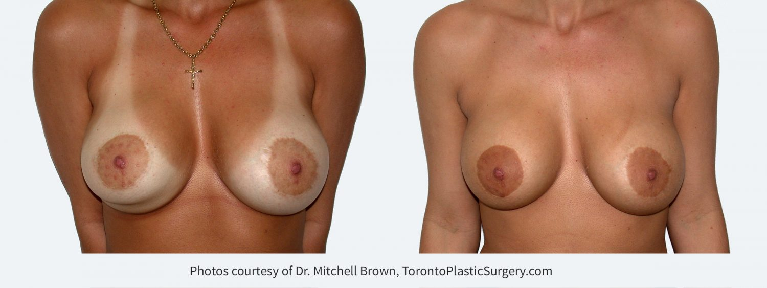 Inferior malposition of the right implant (implant too low) following breast augmentation and reduction of the areola. Right implant position corrected with internal sutures and revision of both areola scars. Before and 6 months after