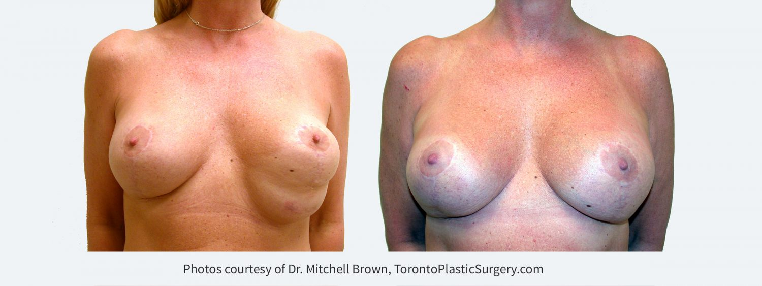 Inferior malposition of the left implant (implant too low) due to excessive release of the inframammary fold following breast augmentation and breast lift. The patient had several failed corrections. Left implant position corrected with internal sutures of the fold and insertion of an internal support matrix. Before and 6 months after