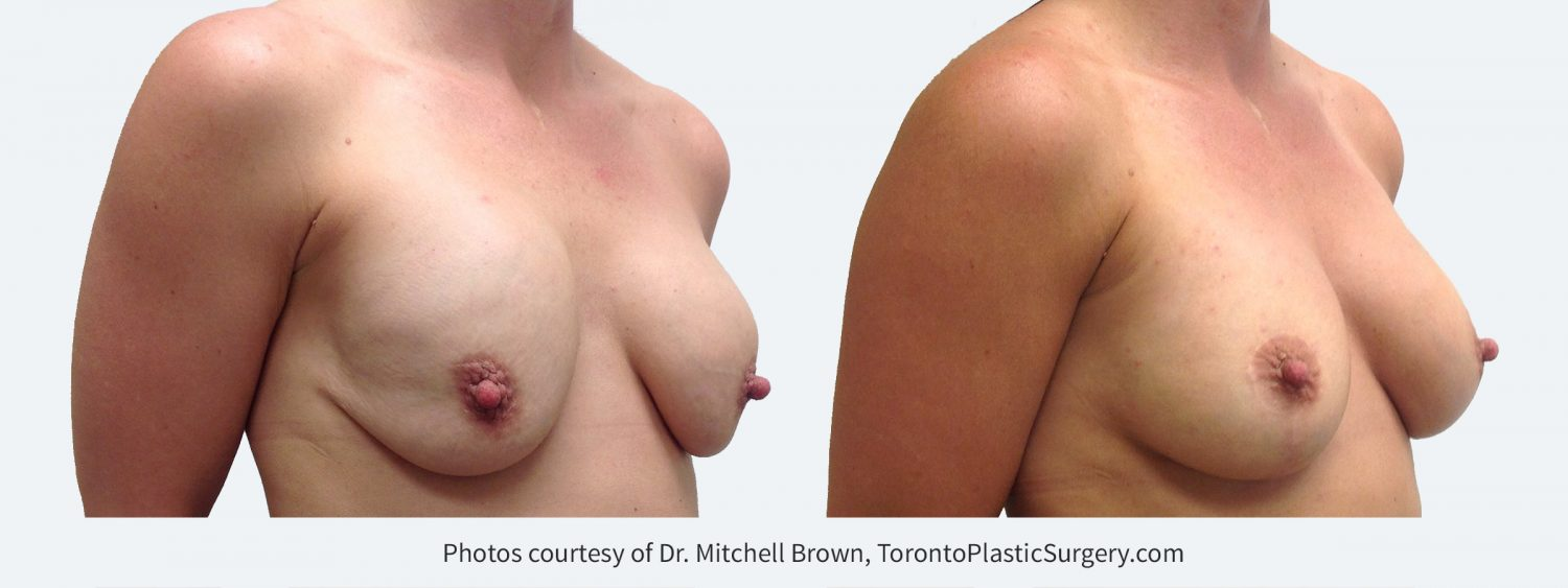 Superior malposition of both implants (implants too high) with sagging of the overlying breast tissue. Correction was performed by inserting new implants in a lower position and by performing a breast lift with incisions placed around the areola and vertically down the breast. Before and 1 year after