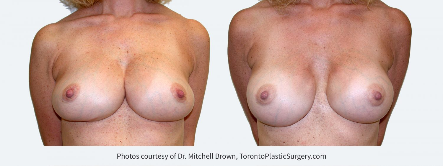 Synmastia (implants too close together). Corrected by placing smaller and narrower implants in a new pocket under the pectoral muscle along with reinforcement of  the medial breast implant pocket. Before and 6 months after