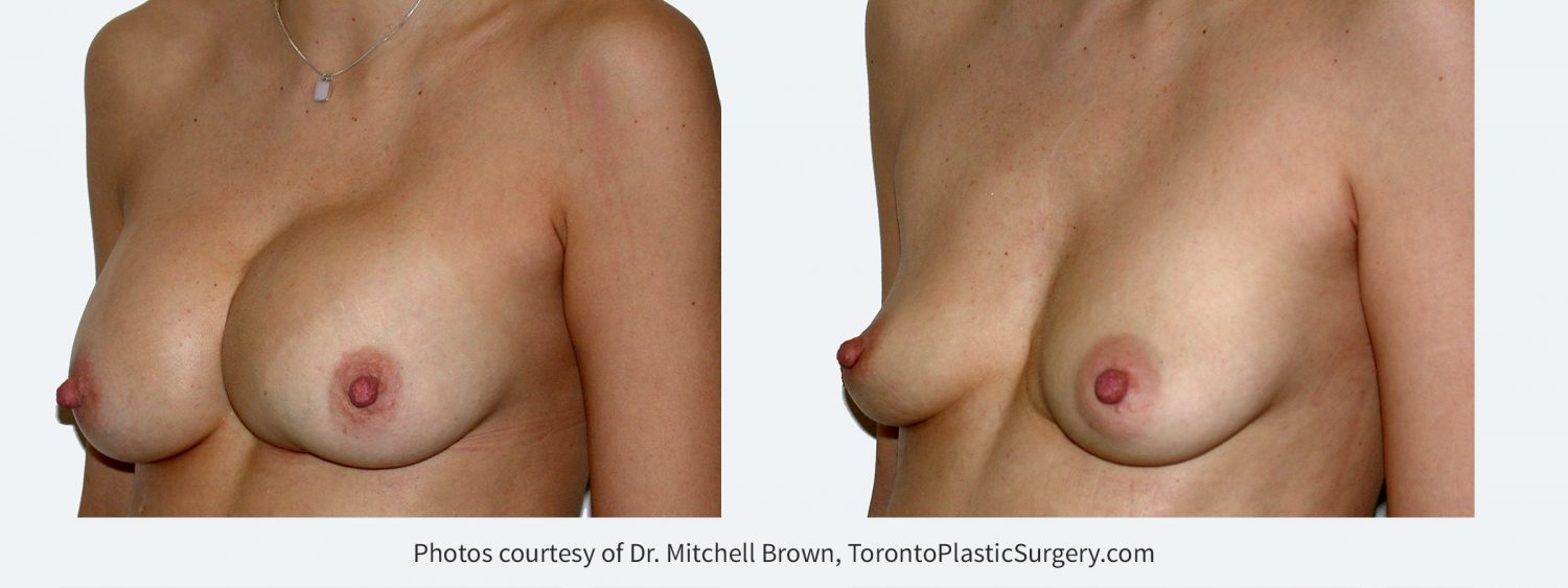 Previous breast augmentation complicated by unrecognized bleeding and shifted implant on the left. Before and 6 months after implant removal