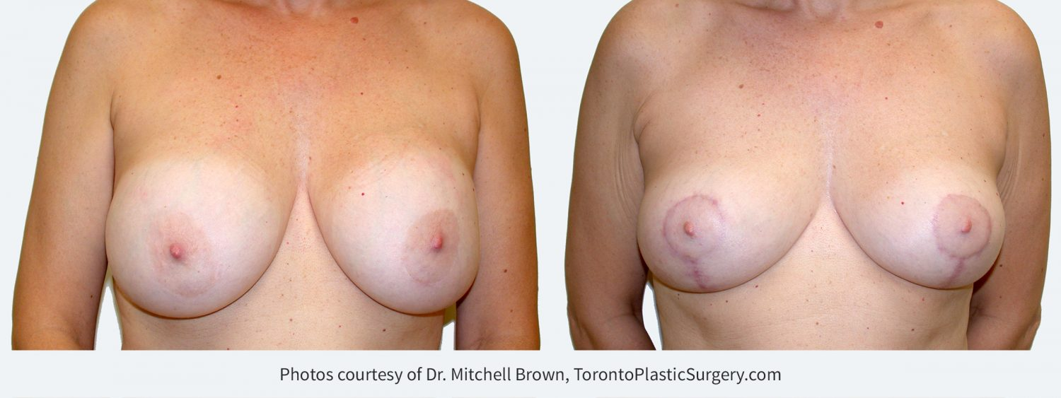 Recurrent capsular contracture treated with implant removal and reshaping of the breasts with a breast lift and fat grafting. Before and 6 months after