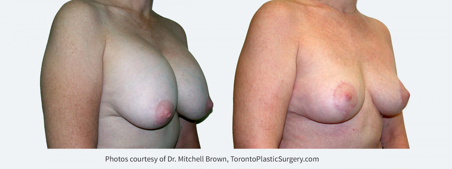 Recurrent capsular contracture and sagging of the breast treated with implant removal and reshaping of the breasts with a breast lift and fat grafting. Before and 6 months after